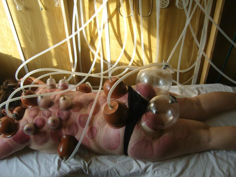 Вакуумный массаж ног для беременных 854